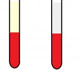 Mẫu huyết tương hoặc huyết thanh xuất hiện đục hoặc 'sữa ảnh hưởng đến kết quả xét nghiệm như thế nào?