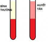 Mẫu máu bị vỡ hồng cầu ảnh hưởng đến kết quả xét nghiệm như thế nào?
